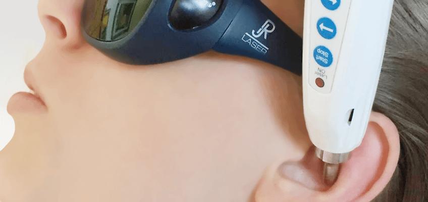 Laser Akupunktur